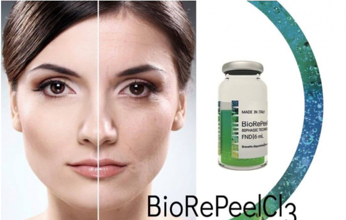 BioRePeelCI3
